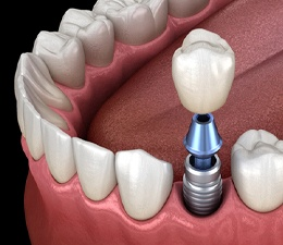 Model showing each part of a dental implant.
