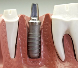 Model of a single unit dental implant post.