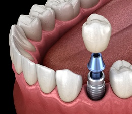 Model showing each part of a single dental implant.