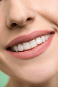 Woman with white spot needing teeth whitening in Waterbury